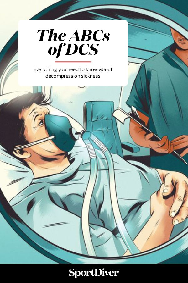 The ABCs of DCS: Everything You Need to Know about Decompression Sickness   —Hyperbaric chambers replicate the increased pressure of a dive to help treat victims of decompression sickness.