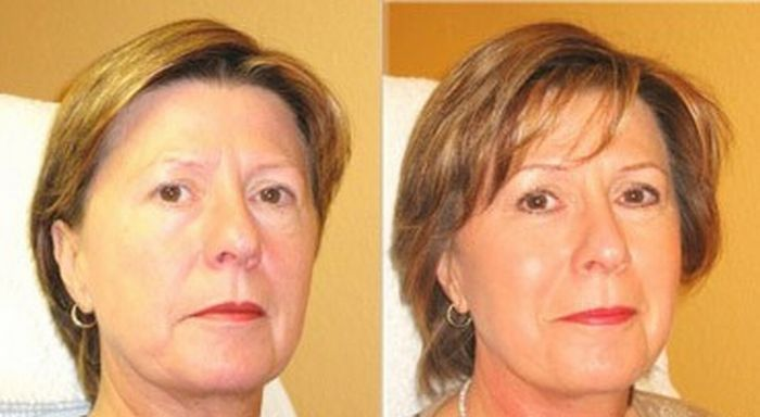 Facial Toning Deconstructed - Here Is Why Facial Massaging Exercise Treatments Are So Splendid