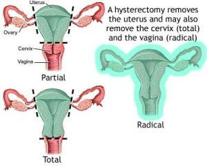 endometriosis: Hysterectomy, menopause and pregnancy do not guarantee relief. They are treatment options, but not definitive solutions.
