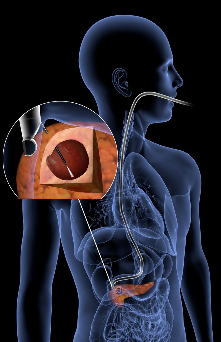 June 22 2017 at 02:40PM Light-scattering tool peers into pancreas to find cancer https://phys.org/news/2017-06-light-scattering-tool-peers-pancreas-cancer.html  [PhysOrg]