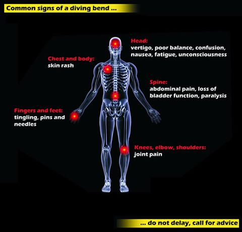 How Serious is Decompression Sickness? - http://aquaviews.net/scuba-guides/decompression-sickness/?utm_source=Pinterest&utm_medium=LeisurePro+Pinterest&utm_campaign=SNAP%2Bfrom%2BAquaviews+-+SCUBA+Blog