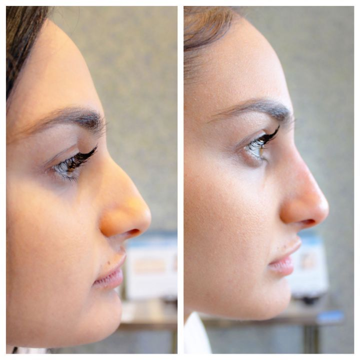 The non-surgical nose job can last for a year or longer  — here's what getting it is ACTUALLY like.
