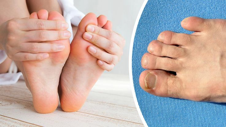 Are your feet showing any of the following signs? They may be trying to tell you something.