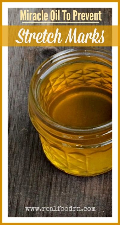 Miracle Oil To Prevent Stretch Marks. Easy to make in your own kitchen, and super nourishing for your skin. Three pregnancies and not one stretch mark! I use it daily!  realfoodrn.com