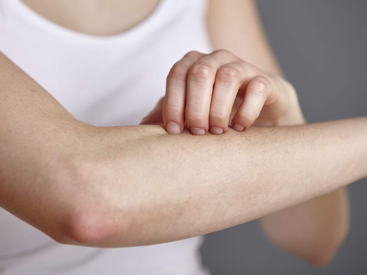 5 Things People With Eczema Don't Want to Hear From You | You may know eczema can cause a red, itchy rash.