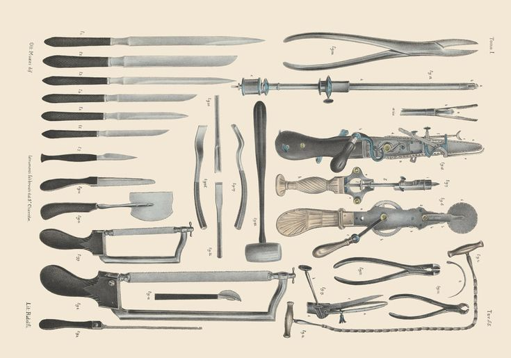 Surgical saws, knives and shears for operations on bone. | Morbidly Beautiful Pictures Reveal The Horror Of Surgery In The Victorian Era