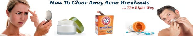 This website is gold when it comes to clearing acne. Its a must-read!!