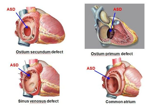 Atrial septal defect causes left to right shunt due to the high compliance of the right atrium and the difference in pressure between the two atria. Secondary to this mechanism, the pressure in the pulmonary circulation is increased.