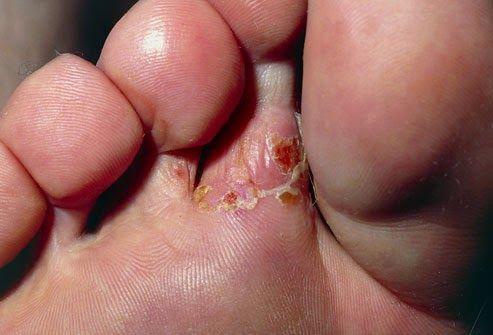 """[[MORE]]"""" Ayak Mantarı İlaçları Ayak Mantarı İlacı Ayak mantarı hastalığına yakalandıysanız, tedavisi için ayak mantarı ilaç isimleri araştırması yaparsınız. Bu yazıda size ayak mantarı için ilaç..."""
