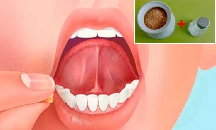 Este truco es increible! coloca sal con azúcar debajo de tu lengua antes de dormir