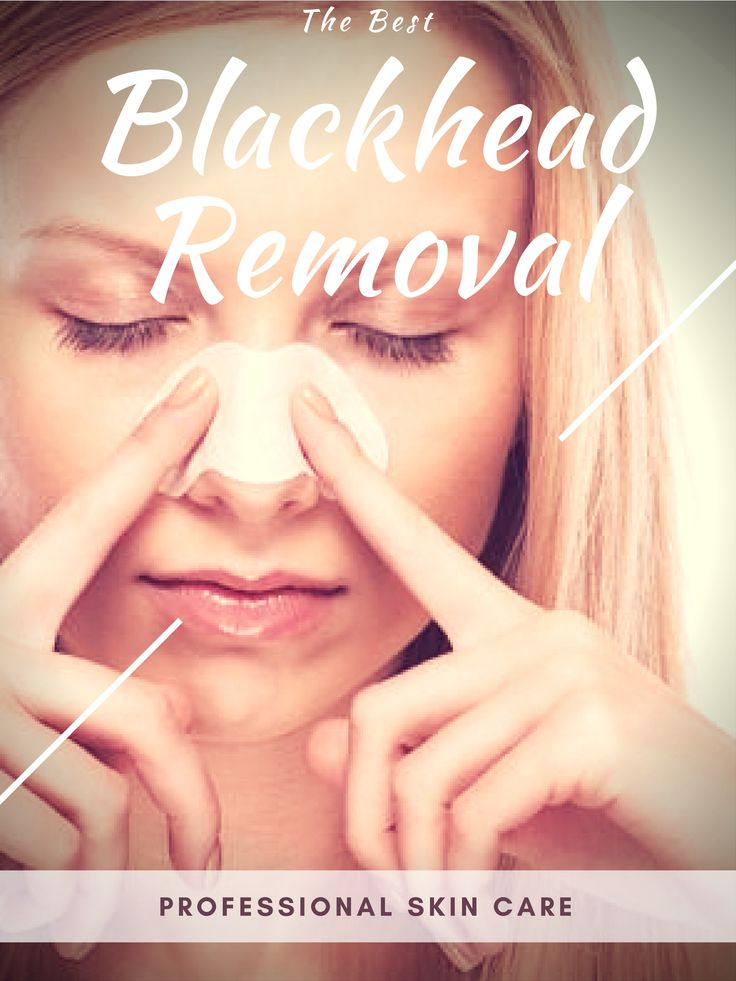 Tired of your blackheads? Want to get rid of your impurities once & for all? Put your blackheads to the test! The qualified blackhead removal tool in this submission is the solution... You'll receive all these benefits: 1.Suction strength is adjustable; 2. unique technology removes blackheads fast, without causing any pain or living skin marks; 3. Skin is left smoother, clearer, with less fine lines... Can you think of any reason not to send for your blaackhead removal?