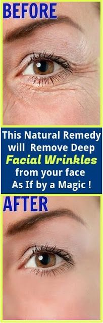 This Natural Remedy will Remove Deep Facial Wrinkles from your face As If by a Magic !