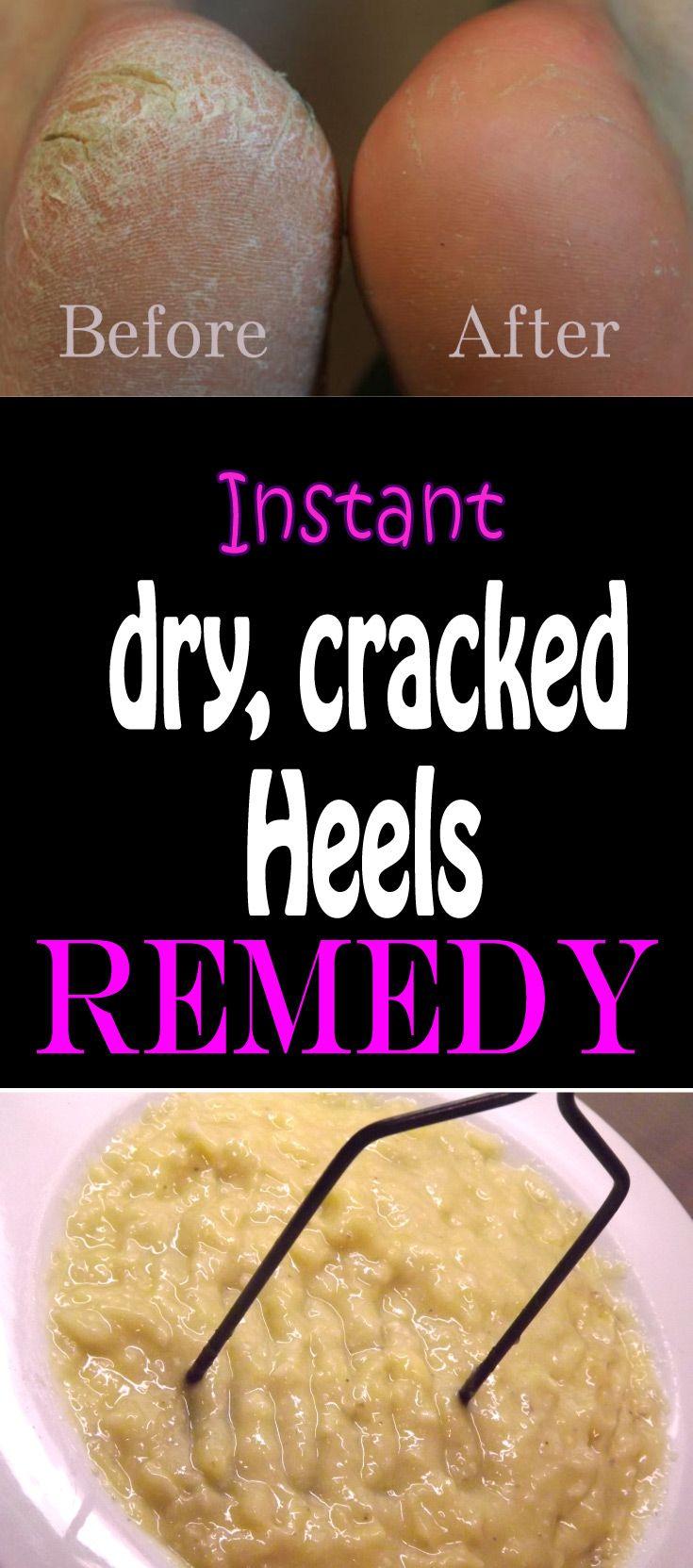 Best 25 Cracked Heel Remedies Ideas On Pinterest