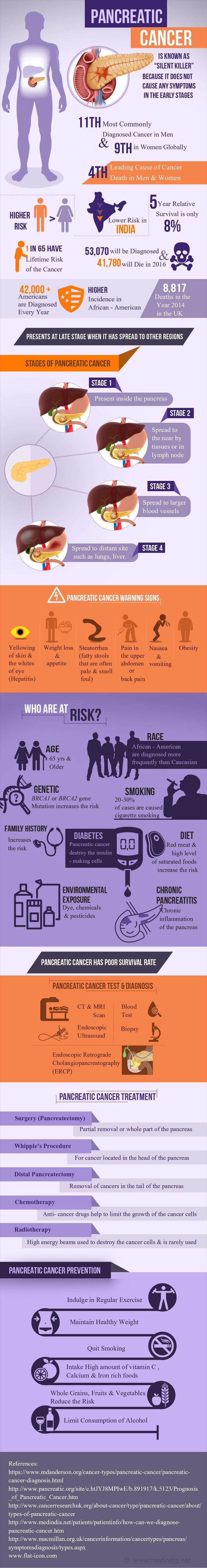 Infographic on Pancreatic Cancer