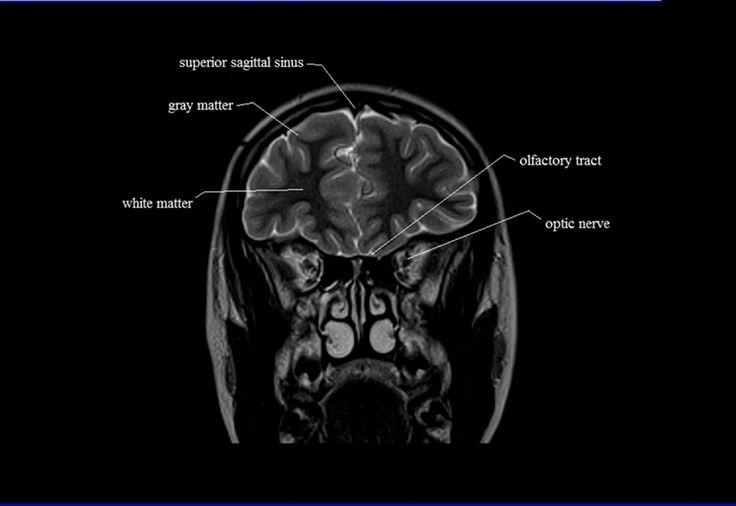 Mejores 239 imágenes de Brain en Pinterest   Enfermería, Anatomía ...