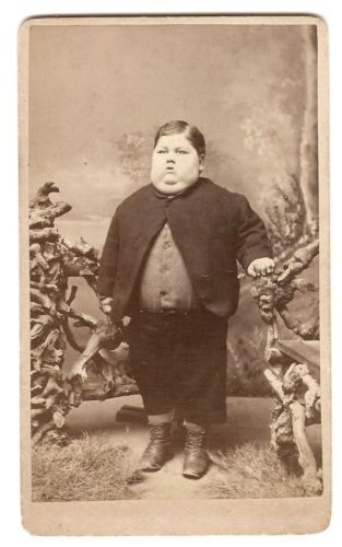 CDV Circus Sideshow Freak Boy with Physical Deformity Vintage   eBay