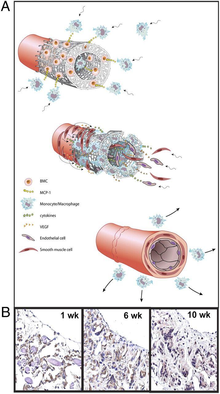 Will Regenerative Medicine Replace Transplantation?