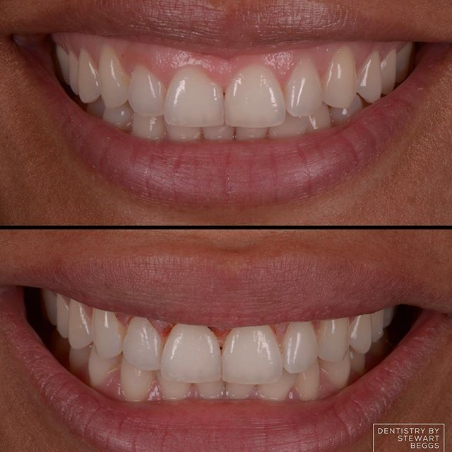 4c70982ecb4a4f90f7c03ad1c605b58f - How To Get Numbness Out Of Mouth After Dentist