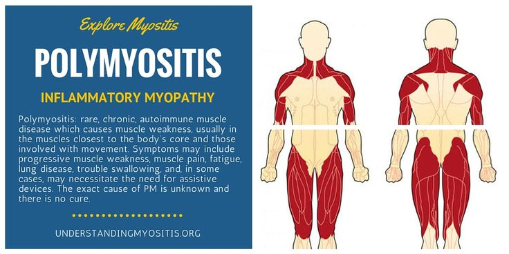 #Polymyositis is a rare, autoimmune muscle disease that affects the skeletal muscles, those involved in movement. Learn more about symptoms and complications.