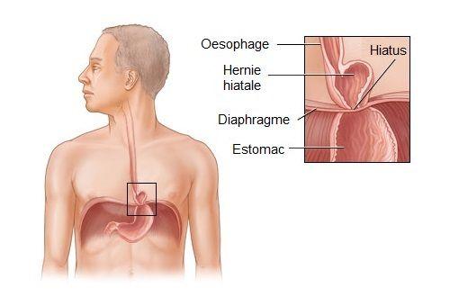 La hernie hiatale est-elle curable ? - Améliore ta Santé