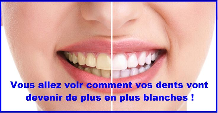 Le sel de mer est un traitement peu coûteux et éprouvés par le temps pour blanchiment dentaires. L'application du sel de mer pour se blanchir les dents est très simple. Pour bénéficier de ses bienfaits, vous pouvez ajouter