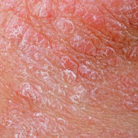 Photos Of Plaque Psoriasis