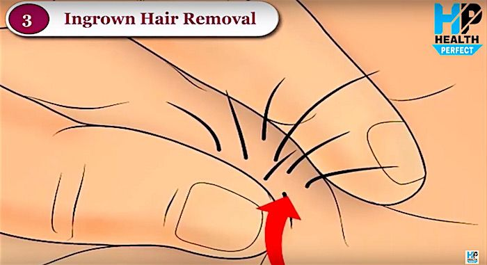 Weird video on how to remove ingrown pubic hair
