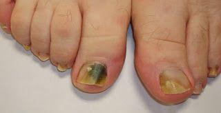 Tratamiento natural y casero para los hongos en las uñas de los pies y manos - Como curar la Onicomicosis, causas y sintomas.