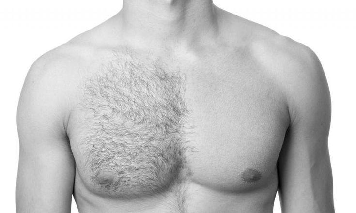 Laser Hair Removal for Guy's Upper body