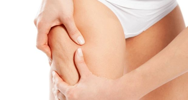 Home Remedies for Cellulite Reduction (Quickly & Naturally)