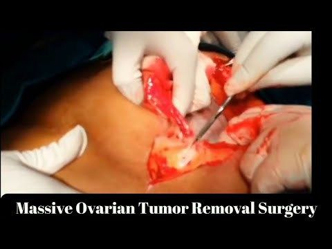 Massive Ovarian Tumor Removal Surgery..!! - ✅WATCH VIDEO👉 http://alternativecancer.solutions/massive-ovarian-tumor-removal-surgery/   	  Ovarian cancer is a cancer that forms inside or over an ovary. It produces abnormal cells that have the ability to invade or spread to other parts of the body. When this process begins, there may not be or there may be vague symptoms. The symptoms become more evident as the cancer...