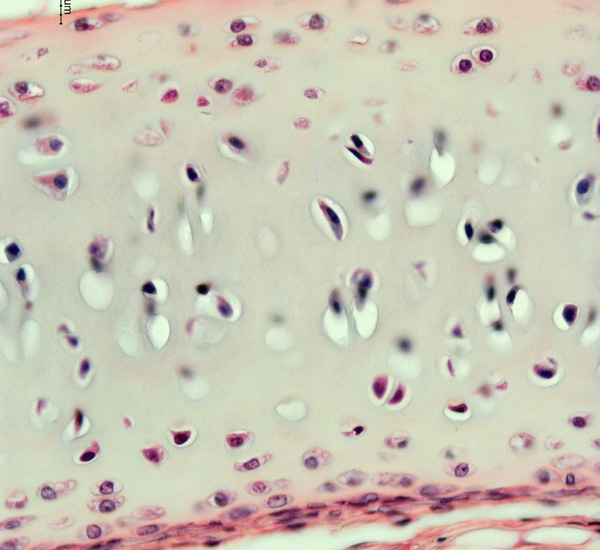 Hyaline Cartilage Connective Tissue; chondrocytes (chondr = cartilage) are found within lacunar (lacuna = space; singular = lacuna) has a firm but flexible ground substance that looks glassy and smooth