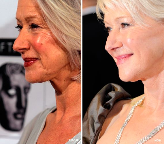 Celebrity botox and fillers