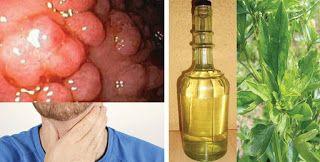 Μια θεραπεία για πολύποδες και άλλες ασθένειες του λάρυγγα και του φάρυγγα! ~ diadrastiko