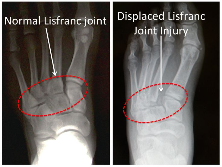 Figure 1B -Lisfranc Injury -x-ray image Normal vs Injured