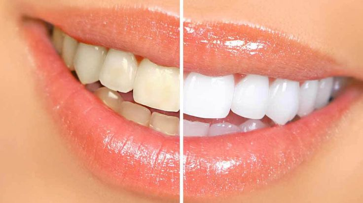 How To Whiten Teeth Naturally At Home  - One of the things patients wonder about the most in cosmetic services today is how to whiten teeth.