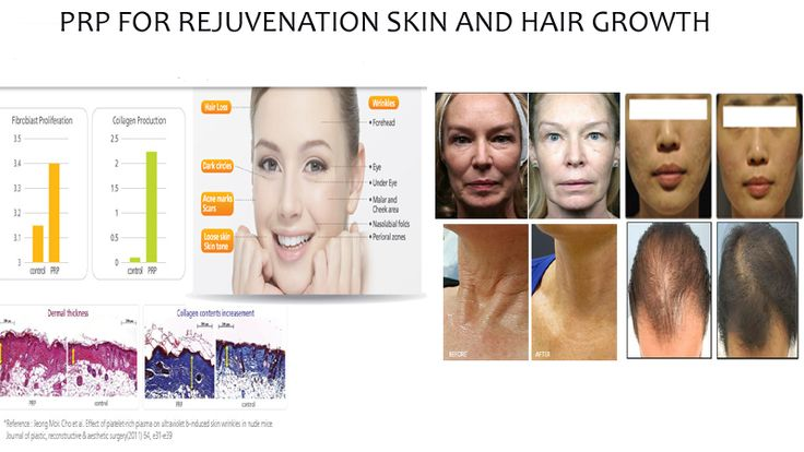PRP rejuvenation - Google keresés