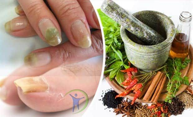 Si tienes hongos en las uñas y no sabes como combatirlos te proponemos estos 10 Remedios naturales para la onicomicosis en uñas de manos y pies.