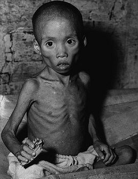 starvation in 3rd world countries - Google Search