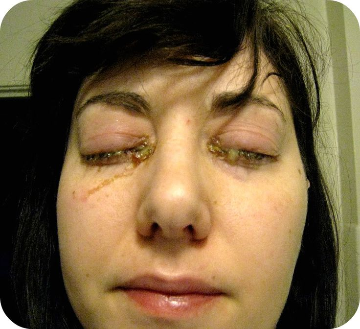 Allergic Conjunctivitis Vs Bacterial Pictures To Pin On: 48 Best Pink Eye Images On Pinterest