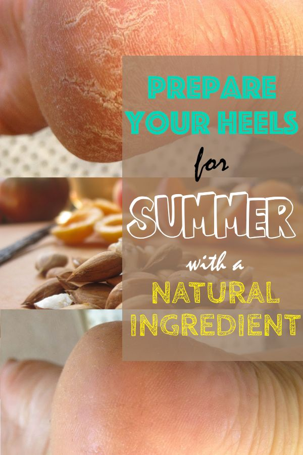 Quick remedy for dry and rough heels...  Because summer is coming and we already started looking after sandals, it's time to turn our attention to our heels.