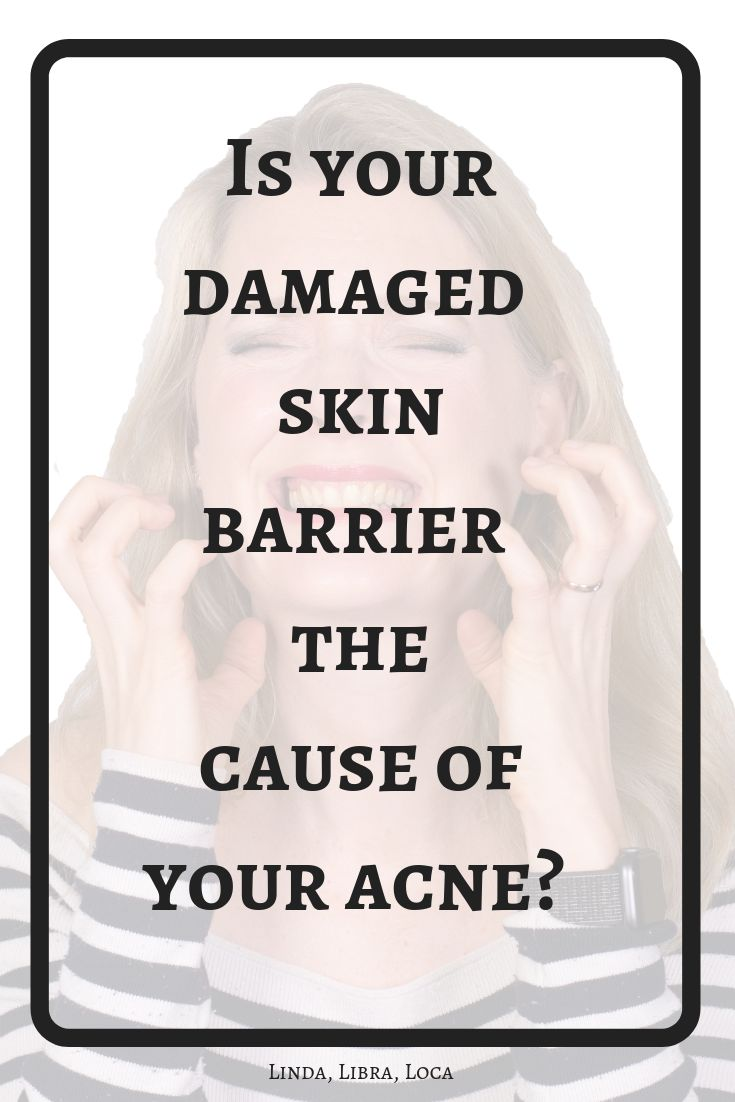 Damaged skin barrier – cause of acne, irritation and atopic dermatitis