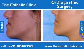 Orthognathic Surgery, Jaw Reshaping, Jaw Correction Surgery Before After Photos in Mumbai, India.