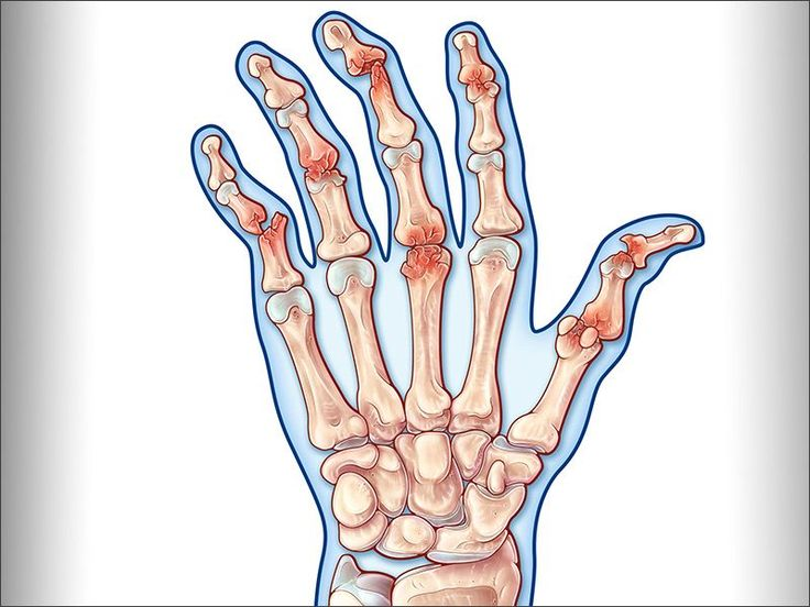 There are over 100 different types of arthritis, ranging from mild to quite…