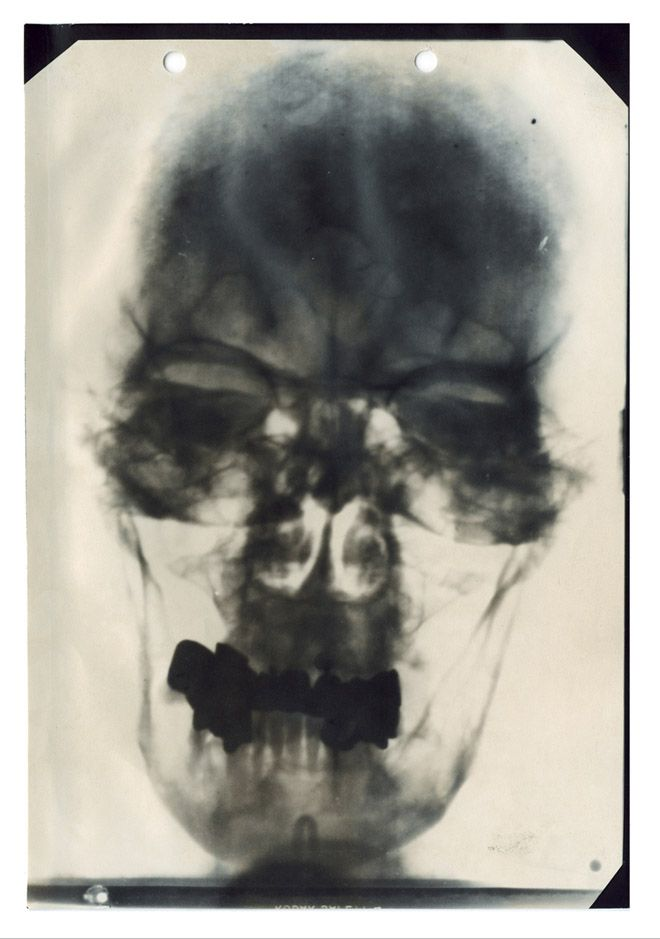 This is one of five known X-rays of Hitler's head, part of his medical records compiled by American military intelligence after the German's surrendered and declassified in 1958. The records also include doctor's reports, diagrams of his teeth and nose and electrocardiograms.