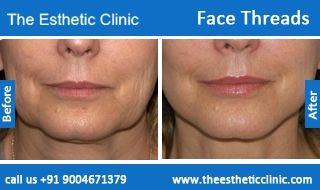 Face Thread Lift Surgery   Facial Threads Facelift Surgery in Mumbai, India.
