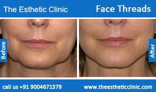 Face Thread Lift Surgery | Facial Threads Facelift Surgery in Mumbai, India.