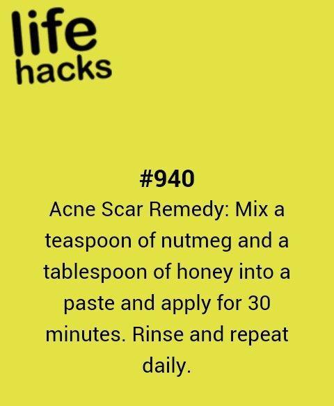 acne, diy, recipe, remedy, tips, hacks, 1000 life hacks