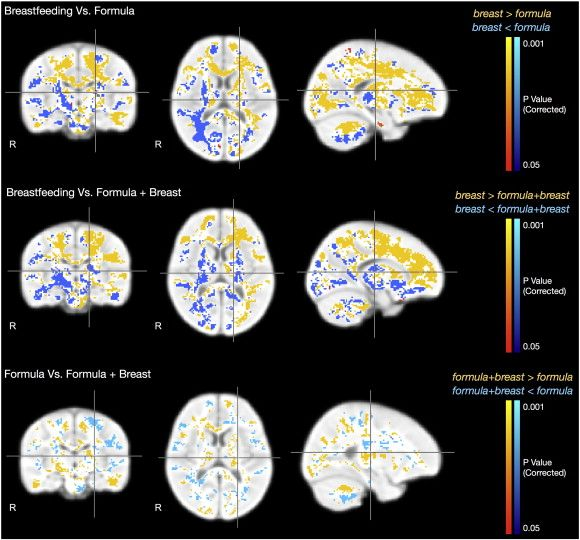 Breastfeeding and early white matter development: A cross-sectional study ☆