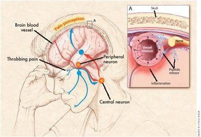 New Models of Migraine